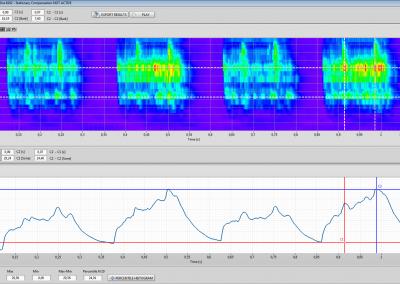 BSR Sound Quality Analyse impulsiver Geräusche